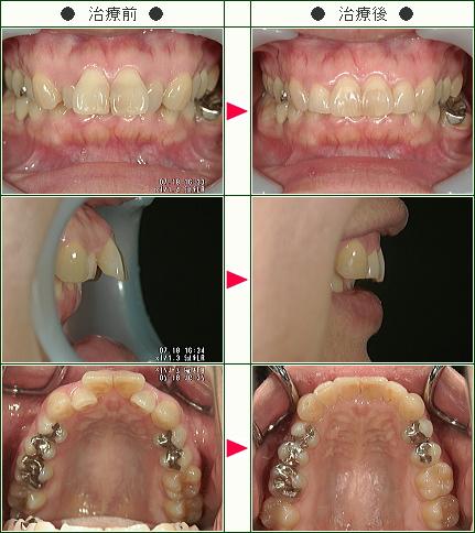 出っ歯矯正症例(E・S様 36歳 女性)