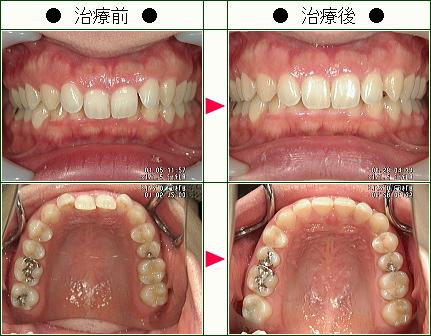 歯のデコボコ矯正症例(エス様 30歳 女性)