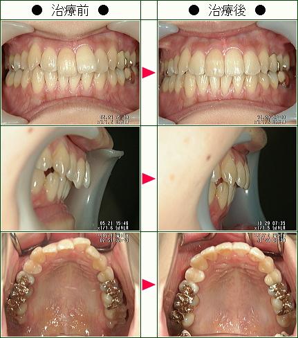 歯のデコボコ矯正症例(E・Y様 24歳 女性)