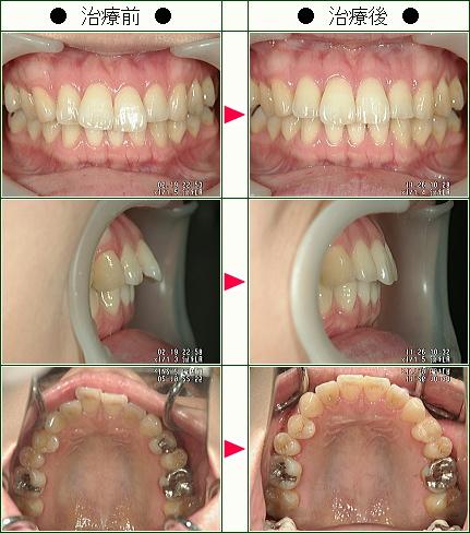 歯のデコボコ矯正症例(F様 25歳 女性)