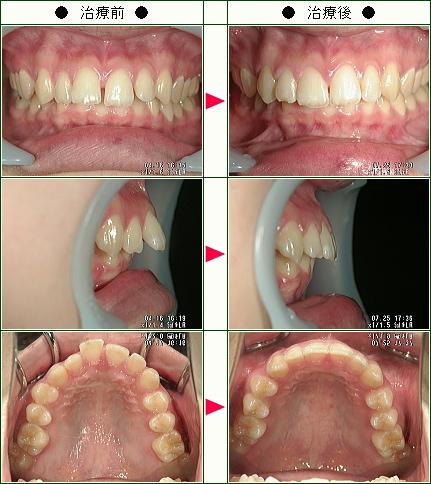 出っ歯矯正症例(F・A様 18歳 女性)
