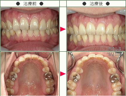 前歯のすきっ歯矯正症例(F.T様 36歳 女性)