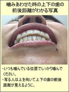 噛み合わせた時の上下の歯の前後距離がわかる写真