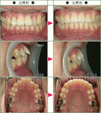 歯のデコボコ矯正症例(ゲン様 33歳 男性)