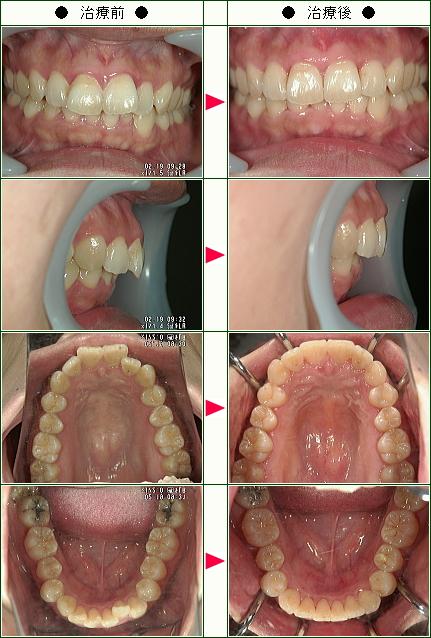 歯のデコボコ矯正症例(げんき様 36歳 女性)