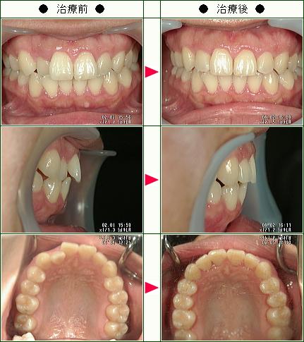 歯のデコボコ矯正症例(H.A様 28歳 女性)