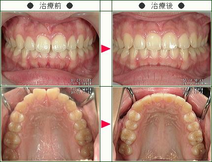 前歯のすきっ歯矯正症例(葉月様 20歳 女性)