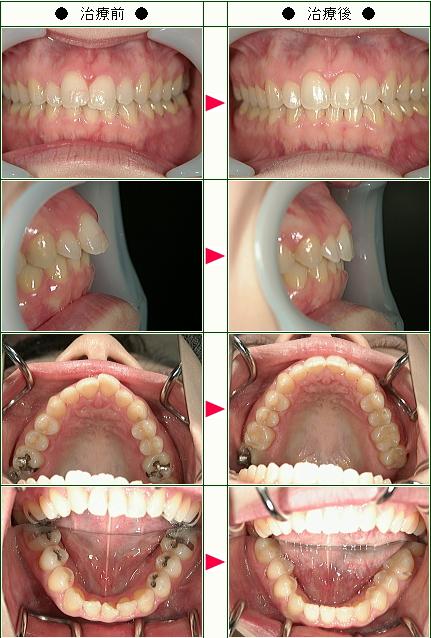 歯のデコボコ矯正症例(HANA様 34歳 女性 )