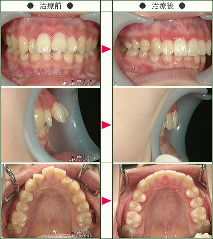 出っ歯矯正症例(長谷川様 20歳 女性)