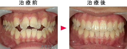 開咬治療前後の症例2