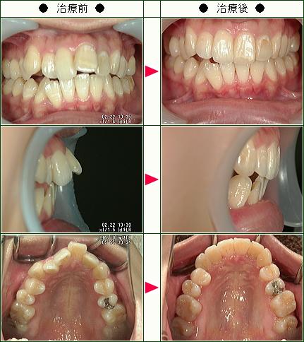 出っ歯矯正症例(H.H様 24歳 女性)