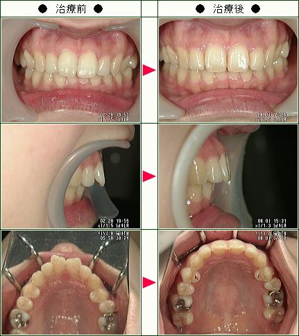 歯のデコボコ矯正症例(ひまわりんご様 29歳 女性)