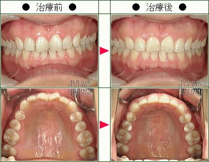 歯のデコボコ矯正症例(ひみこローズ様 32歳 女性)