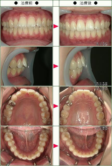 歯のデコボコ矯正症例(広原様 29歳 女性)