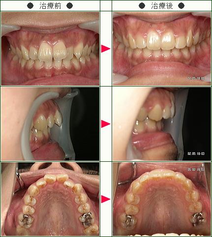 歯のデコボコ矯正症例(ひさこ様 25歳 女性)