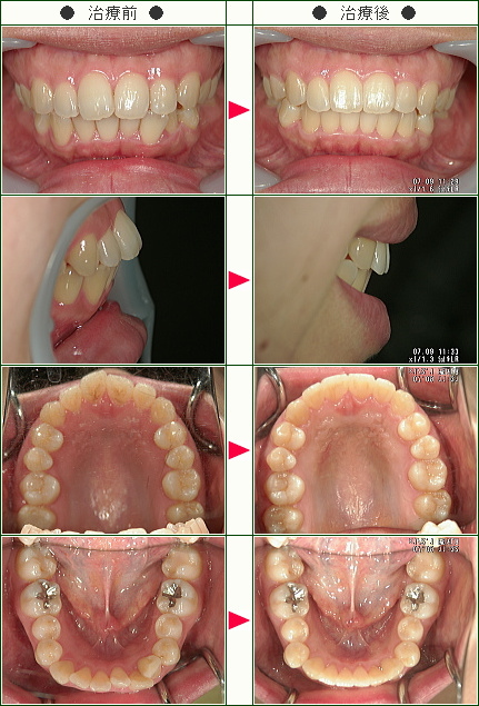 出っ歯矯正症例(H.K様 29歳 女性)