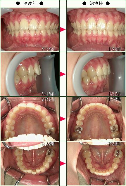 歯のデコボコ矯正症例(H.M様 26歳 女性)