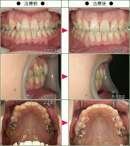 歯のデコボコ矯正症例(H.M.様 37歳 女性)
