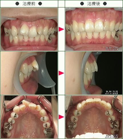歯のデコボコ矯正症例(H・O様 30歳 女性)