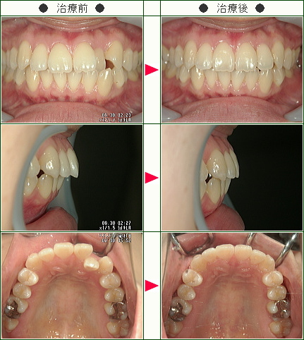 歯のデコボコ矯正症例(H.S様 26歳 女性)