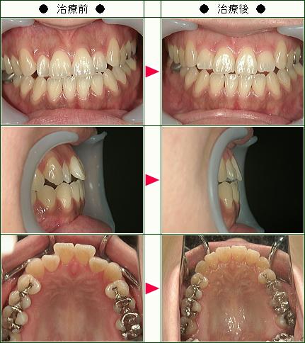 歯のデコボコ矯正症例(H.S様 37歳 女性)
