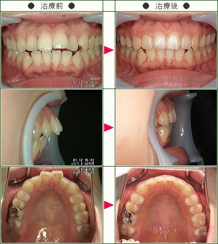 出っ歯矯正症例(H.U様 28歳 女性)