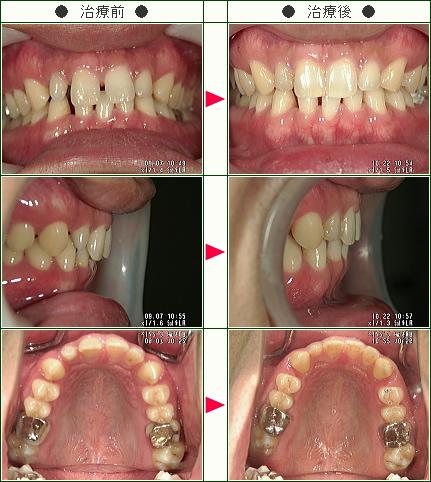 前歯のすきっ歯矯正症例(福地様 30歳 男性)