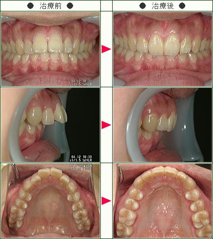 出っ歯矯正症例(古舘様 19歳 女性)
