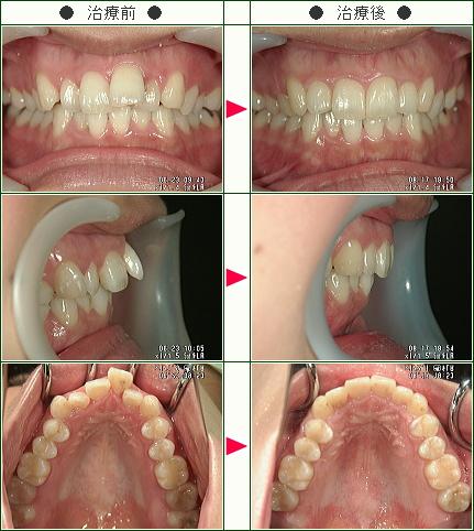 歯のデコボコ矯正症例(I様 29歳 女性)