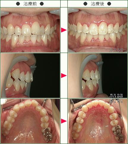 歯のデコボコ矯正症例(I様 32歳 女性)