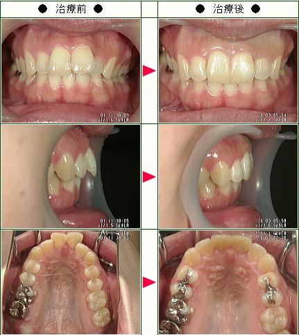 歯のデコボコ矯正症例(I.A様 29歳 女性)