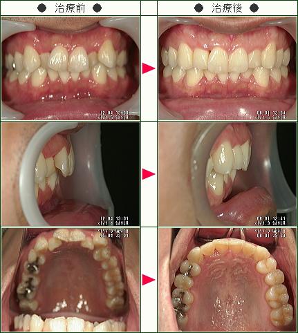 歯のデコボコ矯正症例(池田様 32歳 男性)