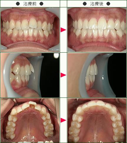 歯のデコボコ矯正症例(I・M様 24歳 女性)