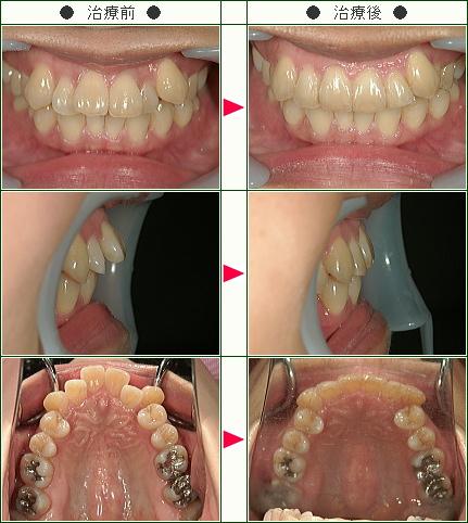 歯のデコボコ矯正症例(いのとも様 41歳 女性)