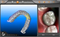 アイテロで歯型のスキャニング