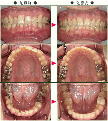 歯のデコボコ矯正症例(J.O様 33歳 女性)