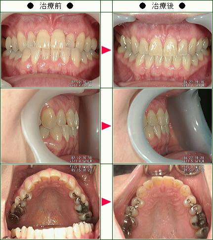 歯のデコボコ矯正症例(J・S様 42歳 女性)