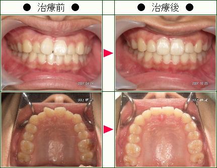 歯のデコボコ矯正症例(K様 18歳 女性)