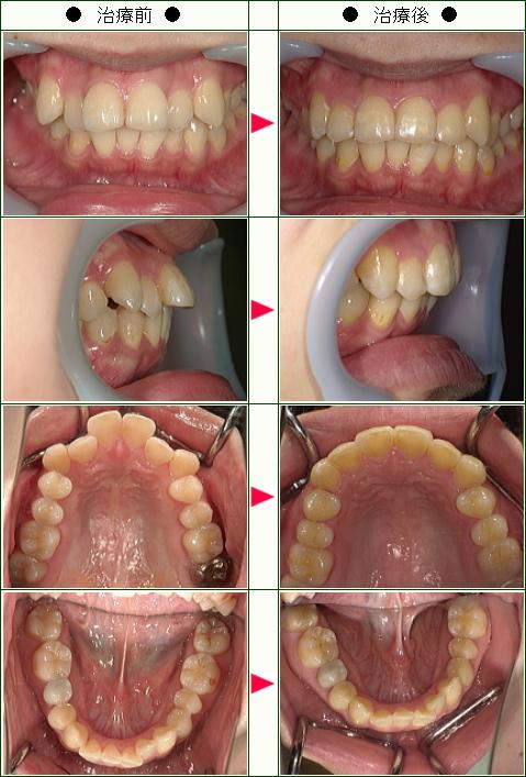 出っ歯矯正症例(K様 28歳 女性)