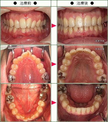 歯のデコボコ矯正症例(K様 30歳 男性)