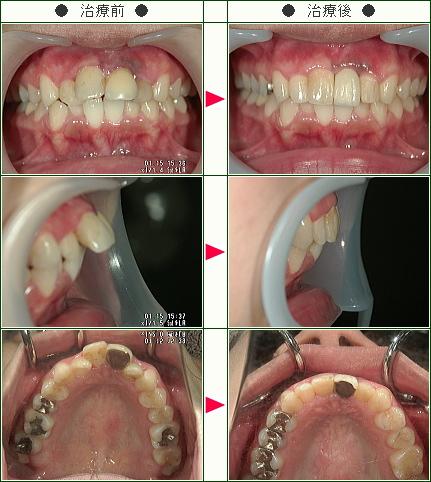 出っ歯矯正症例(K・A様 23歳 女性)