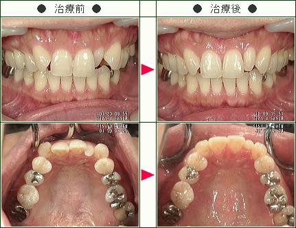 歯のデコボコ矯正症例(甲斐様 38歳 女性)