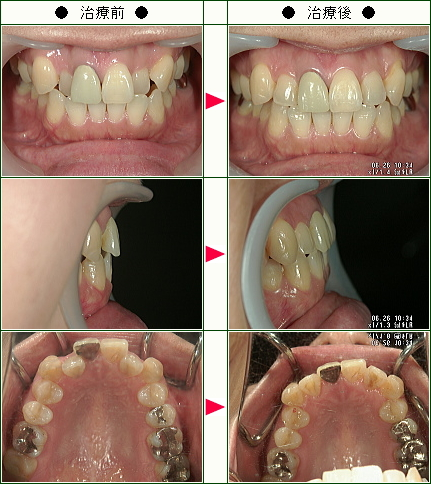 歯のデコボコ矯正症例(釜野様 45歳 女性)
