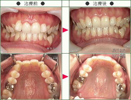 歯のデコボコ矯正症例(カオリ様 27歳 女性)