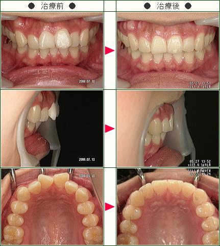 歯のデコボコ矯正症例(河野様 27歳 女性)