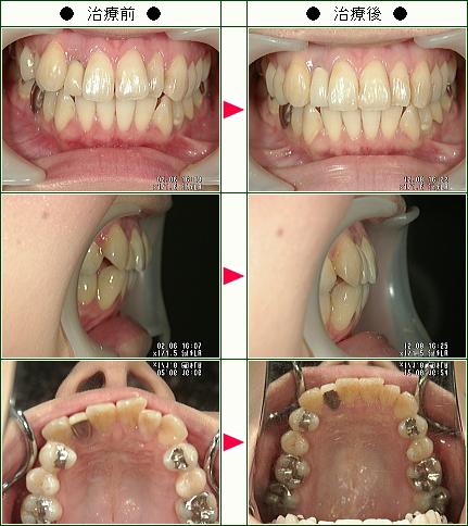 歯のデコボコ矯正症例(川崎様 27歳 女性)