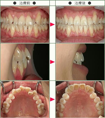 歯のデコボコ矯正症例(Keiko様 35歳 女性)