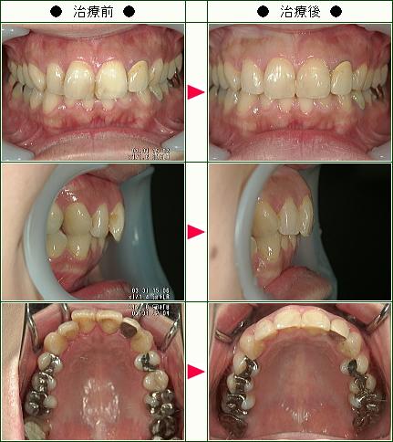 歯のデコボコ矯正症例(K.H様 32歳 女性)