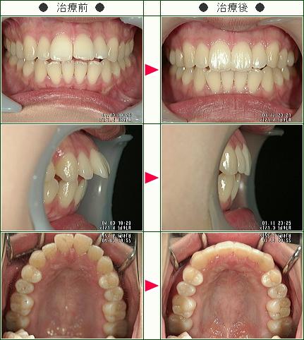 出っ歯矯正症例(木原様 23歳 女性)