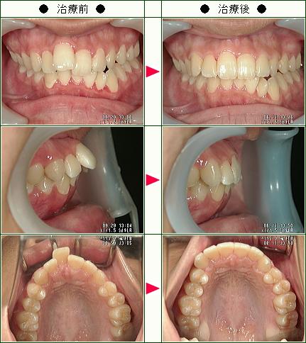 出っ歯矯正症例(K.K様 17歳 女性)